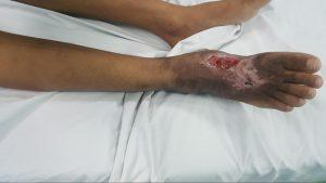 Bệnh nhân Mang Thị S, 11 tuổi, trước và sau mổ