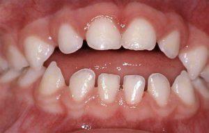 Hình 1: trẻ cắn hở răng cửa do thói quen thở miệng