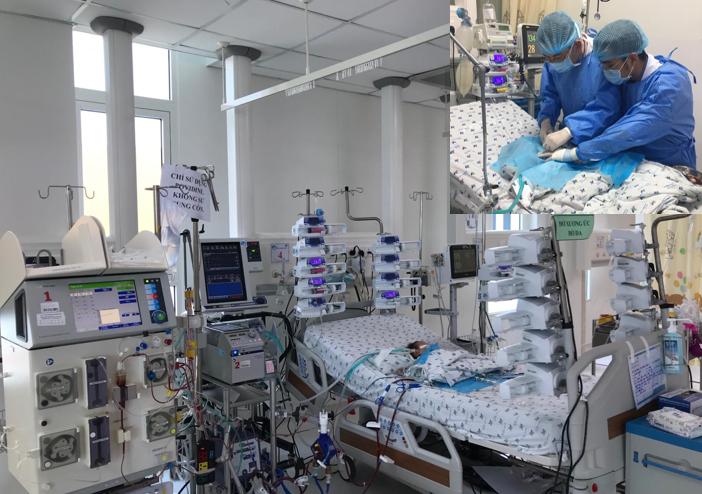 Trẻ sơ sinh hậu phẫu tim bẩm sinh phức tạp, suy hô hấp nặng, được chạy ECMO oxy hóa máu qua màng ngoài cơ thể