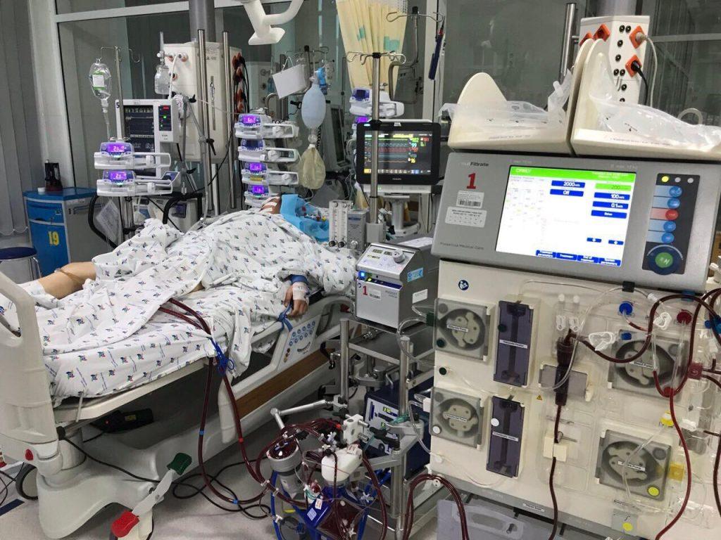 Bệnh nhi 14 tuổi, nữ, viêm cơ tim tối cấp, suy đa cơ quan, được điều trị ECMO và lọc máu liên tục