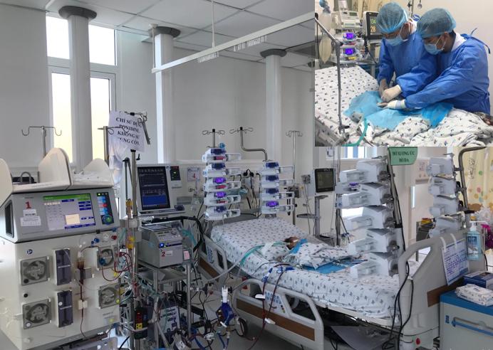 Trẻ sơ sinh 4 ngày tuổi hậu phẫu tim bẩm sinh phức tạp, suy đa cơ quan, được điều trị ECMO và lọc máu liên tục