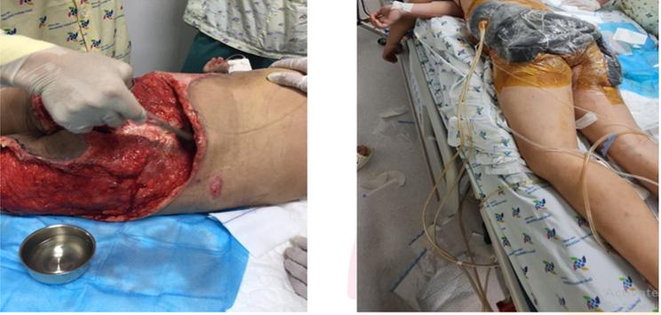 Vết thương của trẻ được đặt Hệ thống hút áp lực âm, tưới rửa liên tục vết thương